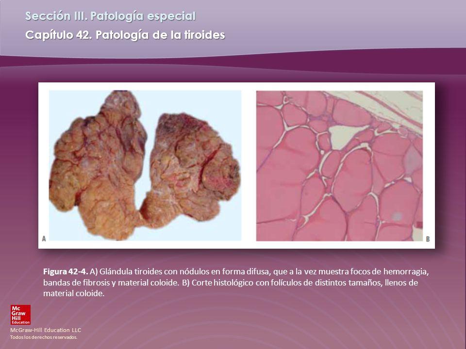 McGraw-Hill Education LLC Todos los derechos reservados. Capítulo 42. Patología de la tiroides Sección III. Patología especial Figura 42-4. A) Glándul