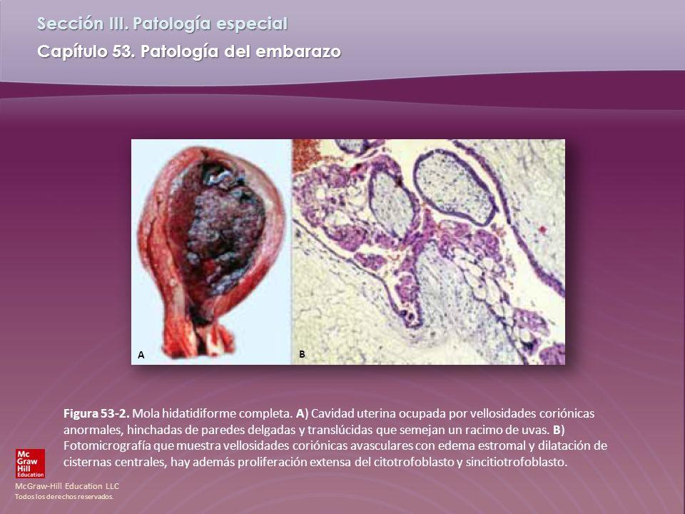 McGraw-Hill Education LLC Todos los derechos reservados. Capítulo 53. Patología del embarazo Sección III. Patología especial Figura 53-2. Mola hidatid