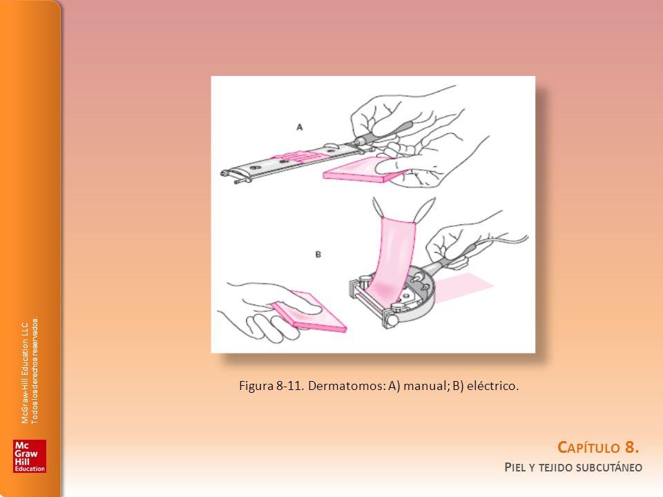 McGraw-Hill Education LLC Todos los derechos reservados. C APÍTULO 8. P IEL Y TEJIDO SUBCUTÁNEO Figura 8-11. Dermatomos: A) manual; B) eléctrico.