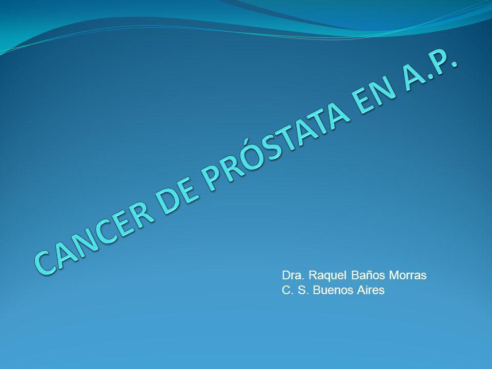 Esquema que ilustra los sucesos de carcinogénesis en el epitelio prostático.