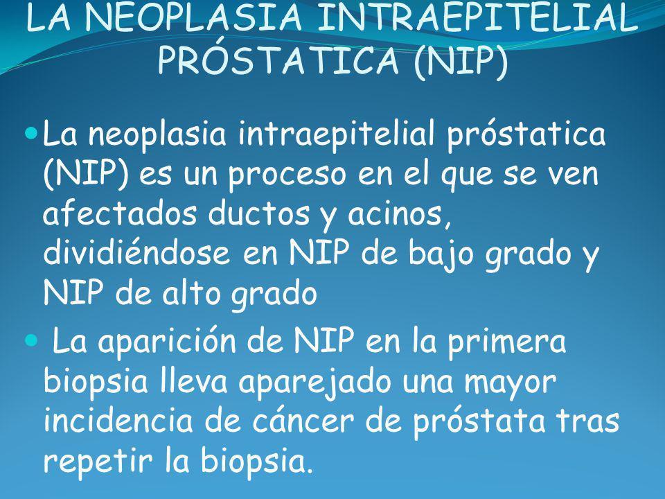 LA NEOPLASIA INTRAEPITELIAL PRÓSTATICA (NIP) La neoplasia intraepitelial próstatica (NIP) es un proceso en el que se ven afectados ductos y acinos, di