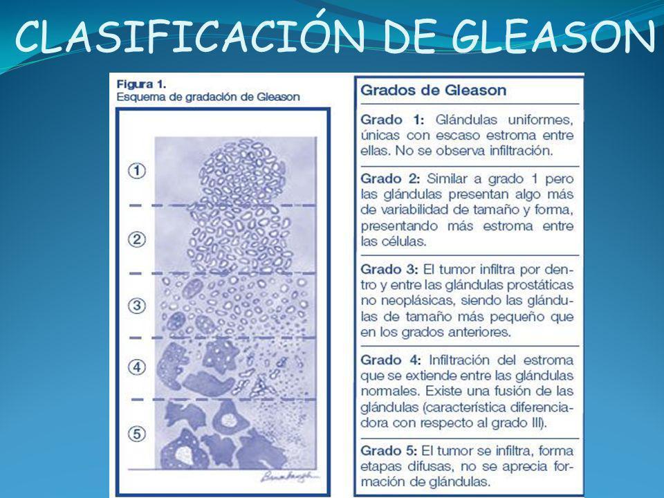 CLASIFICACIÓN DE GLEASON