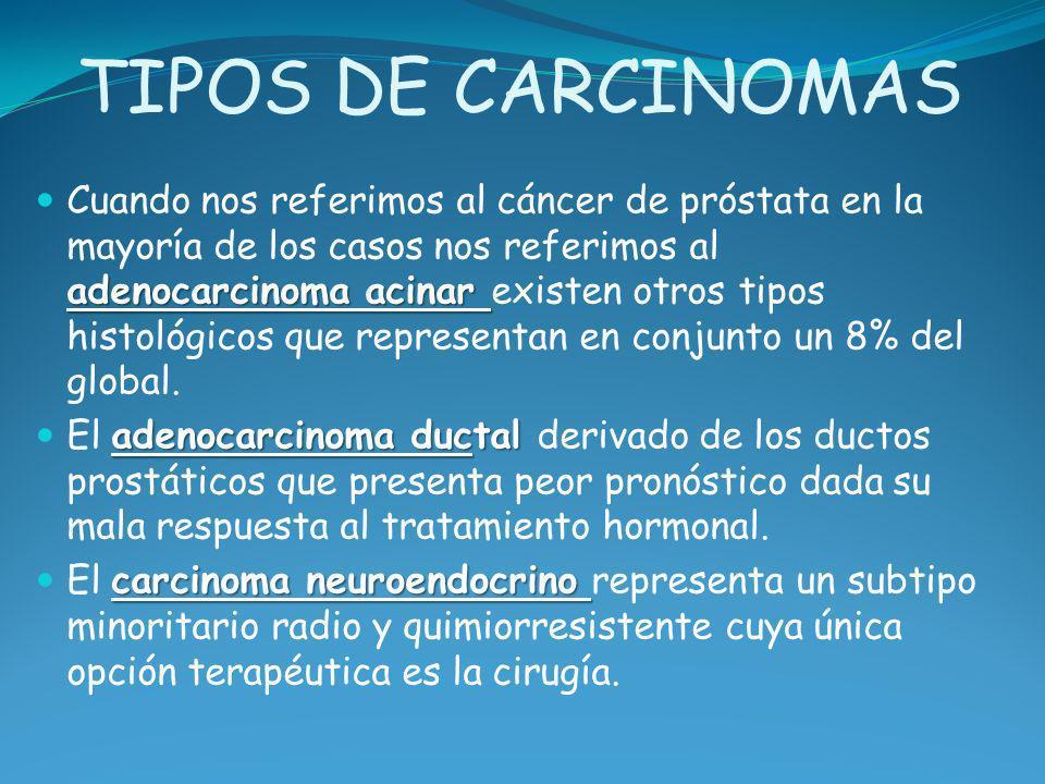 TIPOS DE CARCINOMAS adenocarcinoma acinar Cuando nos referimos al cáncer de próstata en la mayoría de los casos nos referimos al adenocarcinoma acinar