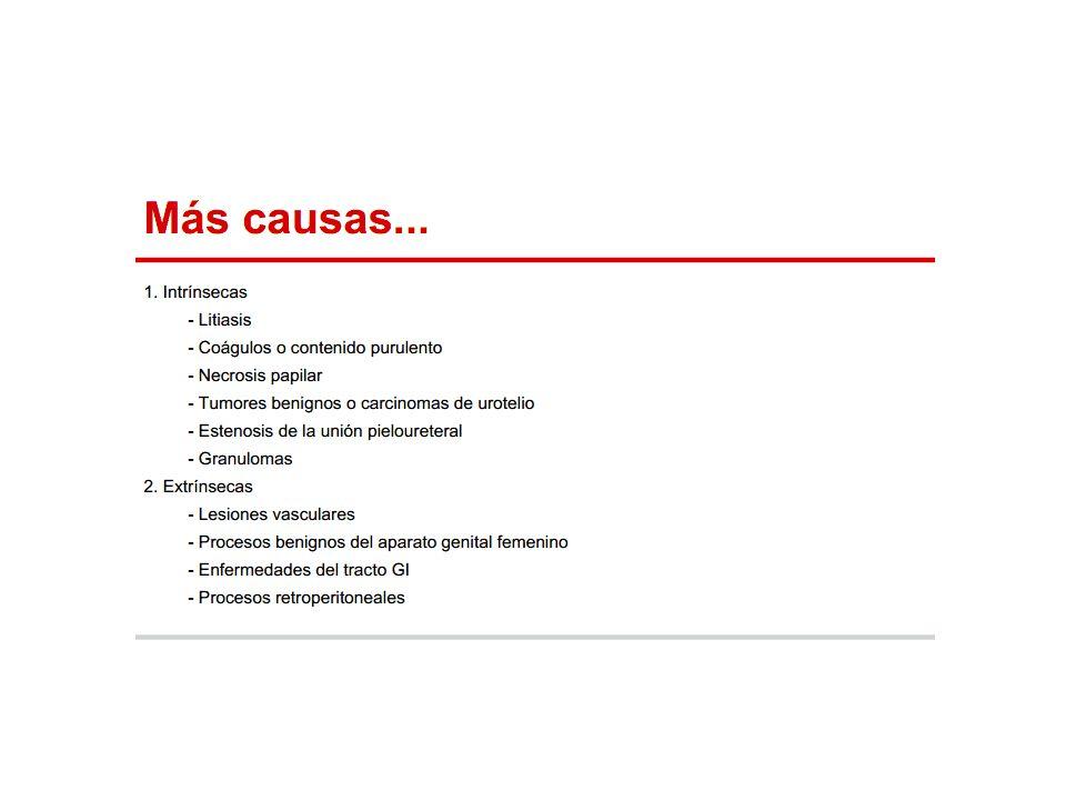 Tamsulosina -> Riesgo de síndrome de iris flácido intraoperatorio durante la cirugía de cataratas.