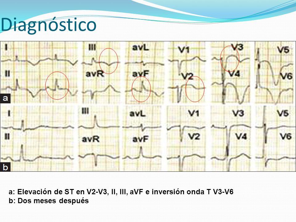 a: Elevación de ST en V2-V3, II, III, aVF e inversión onda T V3-V6 b: Dos meses después