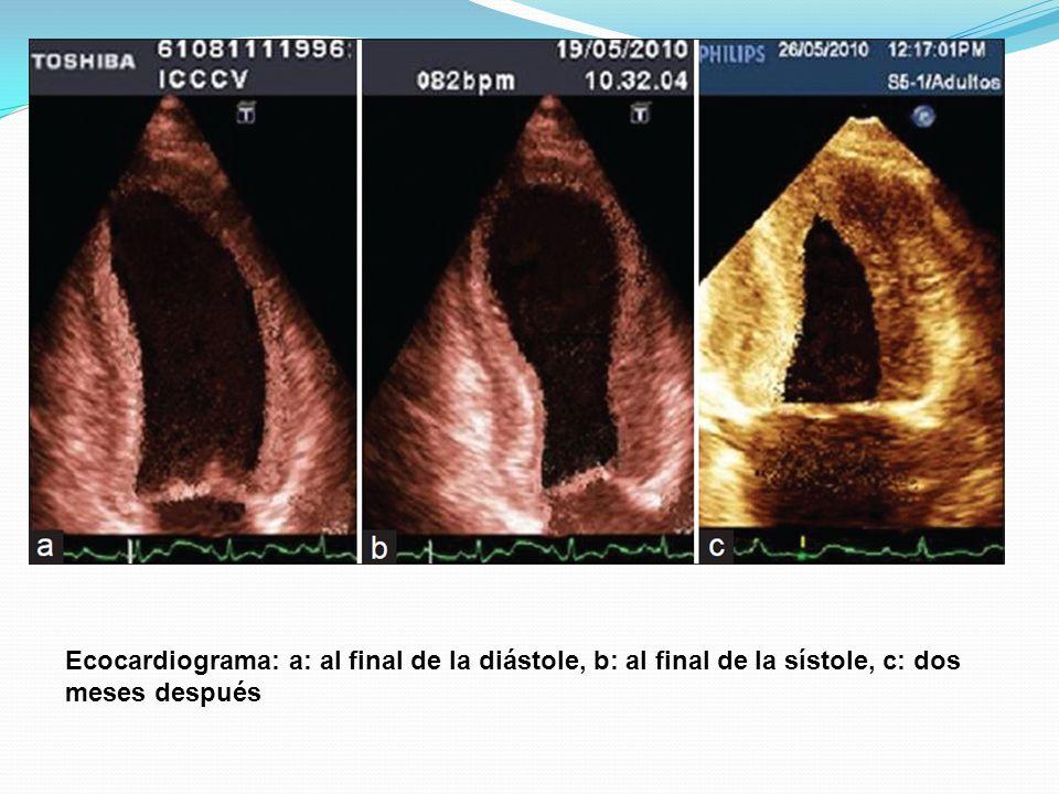 Ecocardiograma: a: al final de la diástole, b: al final de la sístole, c: dos meses después