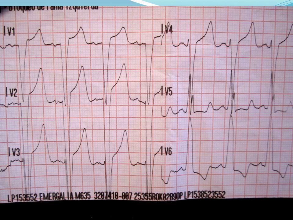 Coronariografía: a: Coronaria izquierda, b: coronaria derecha