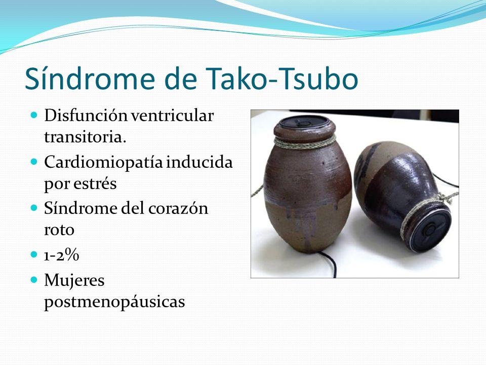 Síndrome de Tako-Tsubo Disfunción ventricular transitoria.
