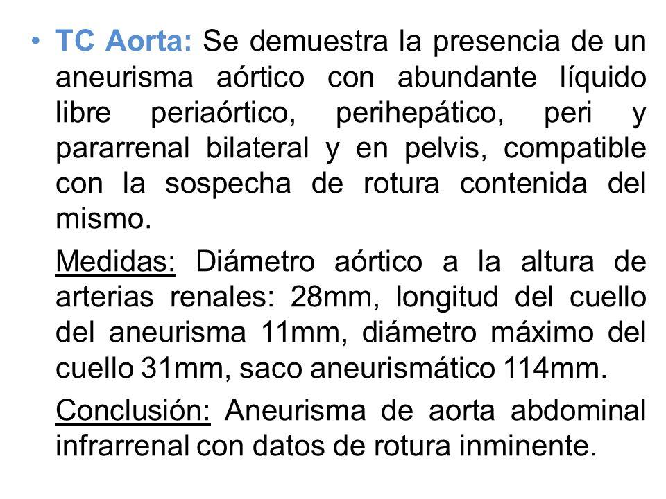 TC Aorta: Se demuestra la presencia de un aneurisma aórtico con abundante líquido libre periaórtico, perihepático, peri y pararrenal bilateral y en pe
