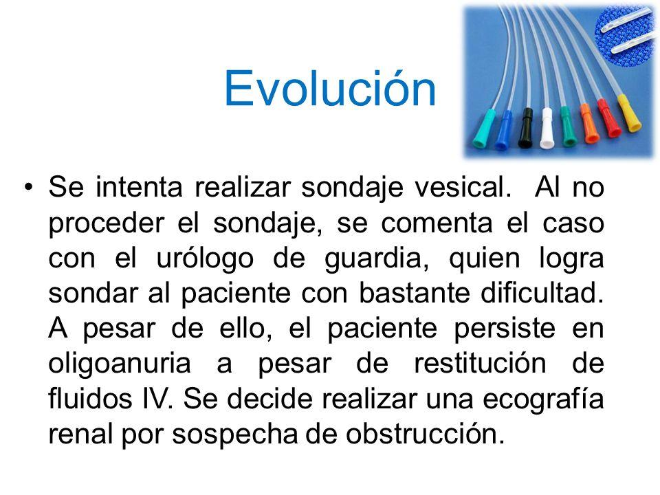 Evolución Se intenta realizar sondaje vesical. Al no proceder el sondaje, se comenta el caso con el urólogo de guardia, quien logra sondar al paciente