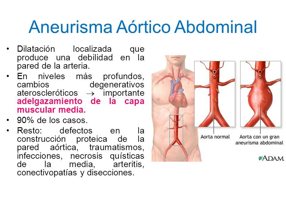 Aneurisma Aórtico Abdominal Dilatación localizada que produce una debilidad en la pared de la arteria. En niveles más profundos, cambios degenerativos