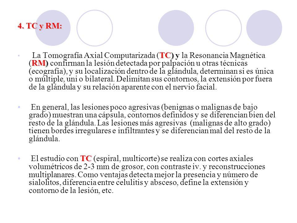 4. TC y RM: TC) RM) La Tomografía Axial Computarizada (TC) y la Resonancia Magnética (RM) confirman la lesión detectada por palpación u otras técnicas