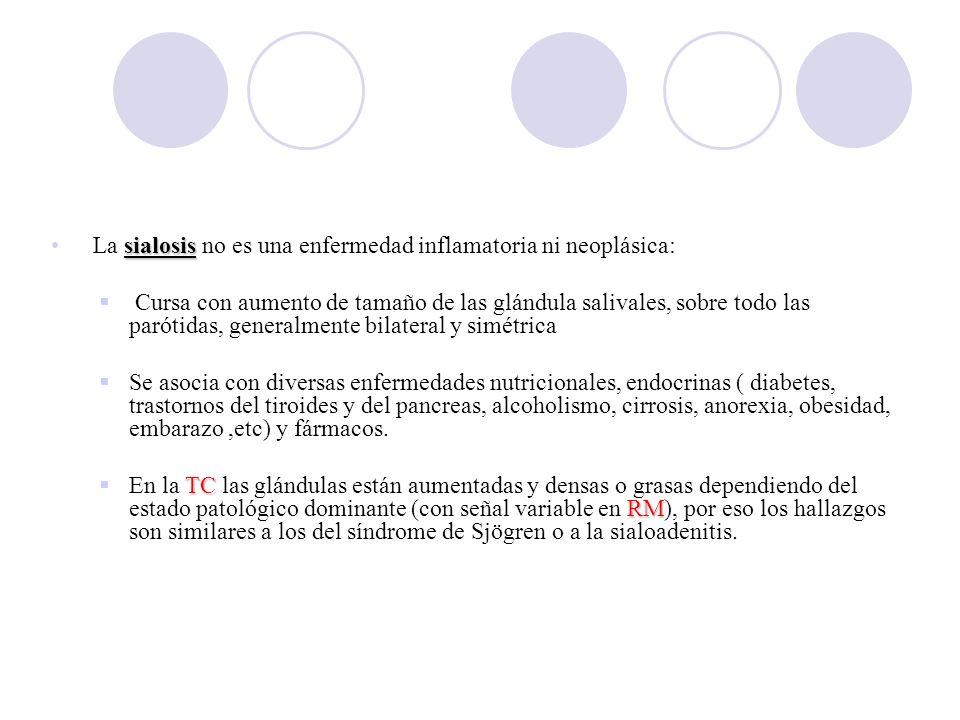 sialosis La sialosis no es una enfermedad inflamatoria ni neoplásica: Cursa con aumento de tamaño de las glándula salivales, sobre todo las parótidas, generalmente bilateral y simétrica Se asocia con diversas enfermedades nutricionales, endocrinas ( diabetes, trastornos del tiroides y del pancreas, alcoholismo, cirrosis, anorexia, obesidad, embarazo,etc) y fármacos.