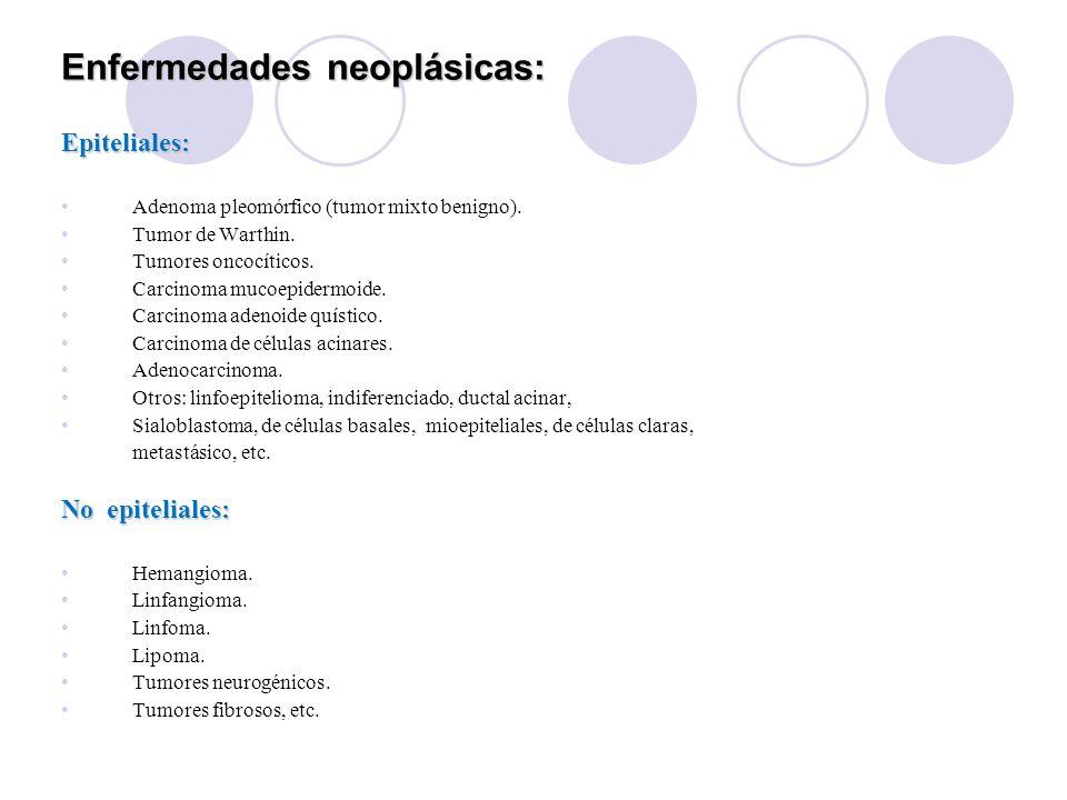 Enfermedades neoplásicas: Epiteliales: Adenoma pleomórfico (tumor mixto benigno).