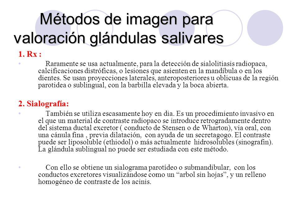 Métodos de imagen para valoración glándulas salivares 1.