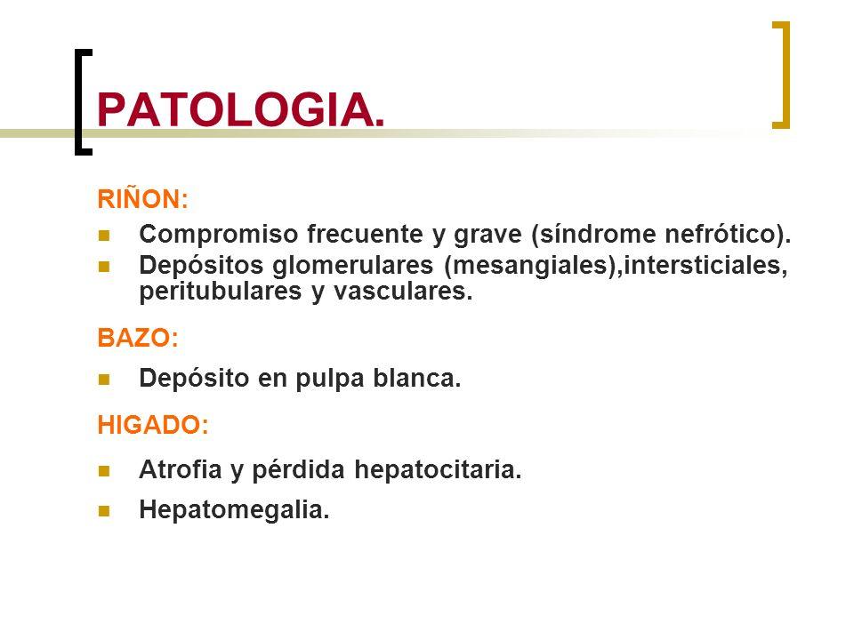 PATOLOGIA. RIÑON: Compromiso frecuente y grave (síndrome nefrótico). Depósitos glomerulares (mesangiales),intersticiales, peritubulares y vasculares.