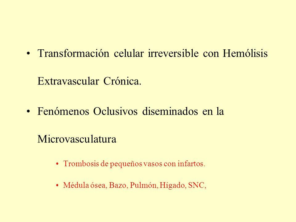 Transformación celular irreversible con Hemólisis Extravascular Crónica. Fenómenos Oclusivos diseminados en la Microvasculatura Trombosis de pequeños
