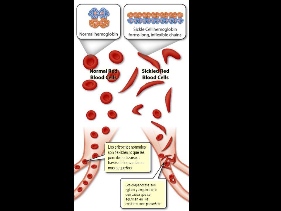 Los eritrocitos normales son flexibles, lo que les permite deslizarse a través de los capilares mas pequeños Los drepanocitos son rigidos y angulados,