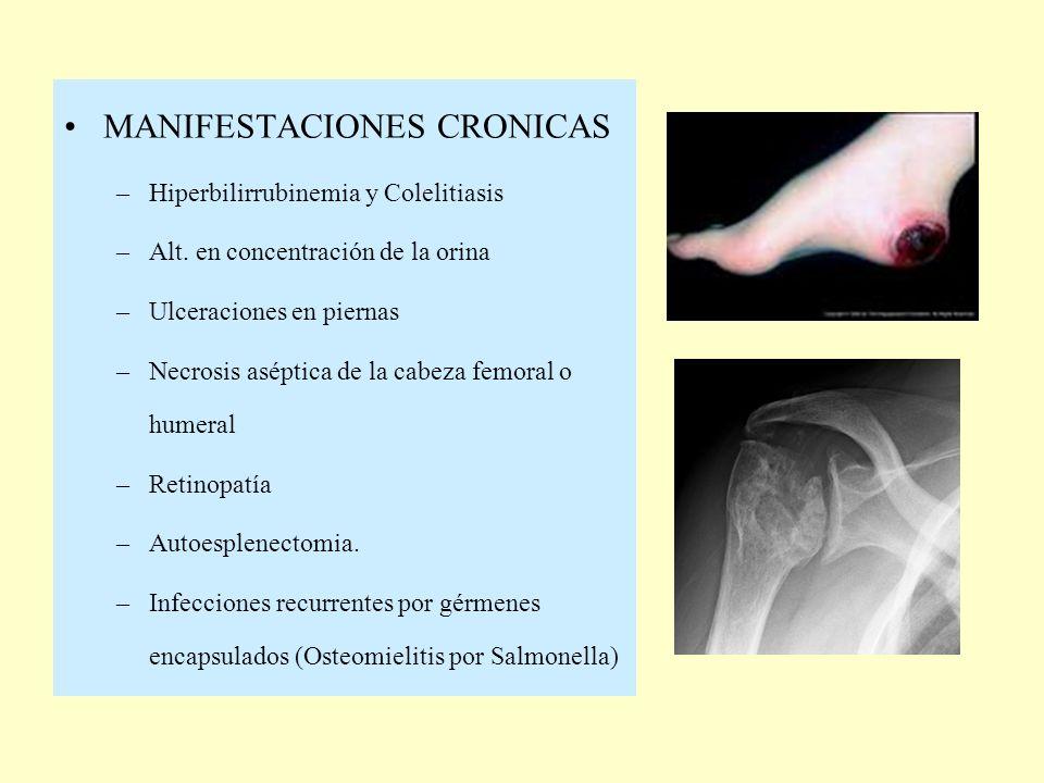 MANIFESTACIONES CRONICAS –Hiperbilirrubinemia y Colelitiasis –Alt. en concentración de la orina –Ulceraciones en piernas –Necrosis aséptica de la cabe