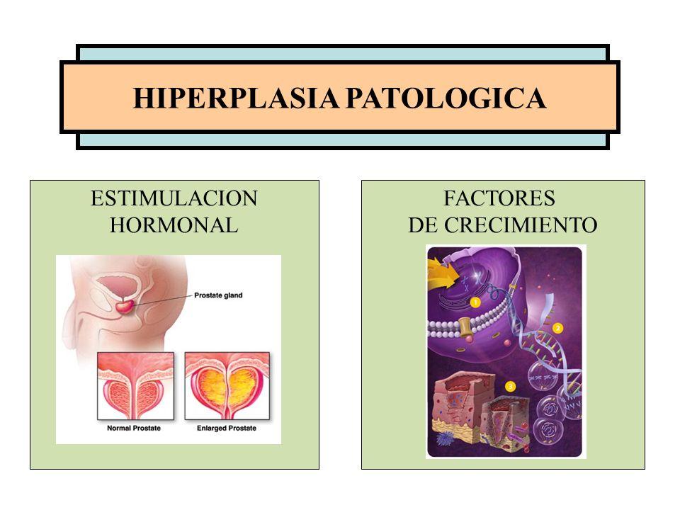HIPERPLASIA PATOLOGICA ESTIMULACION HORMONAL FACTORES DE CRECIMIENTO