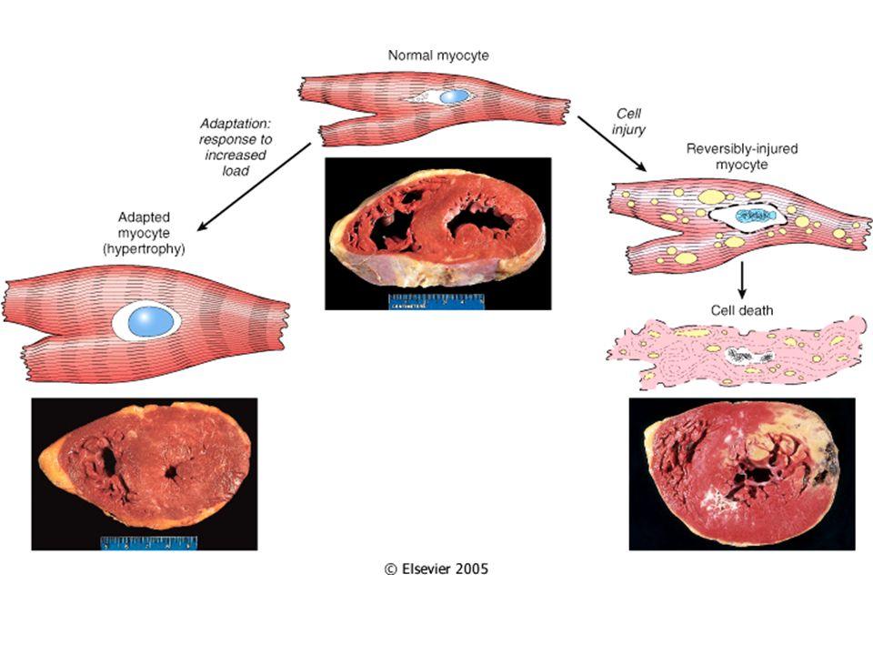ADAPTACIONES CELULARES Suceden para poder soportar y sobrevivir a las nuevas condiciones de la célula.