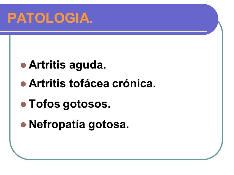 PATOLOGIA. Artritis aguda. Artritis tofácea crónica. Tofos gotosos. Nefropatía gotosa.