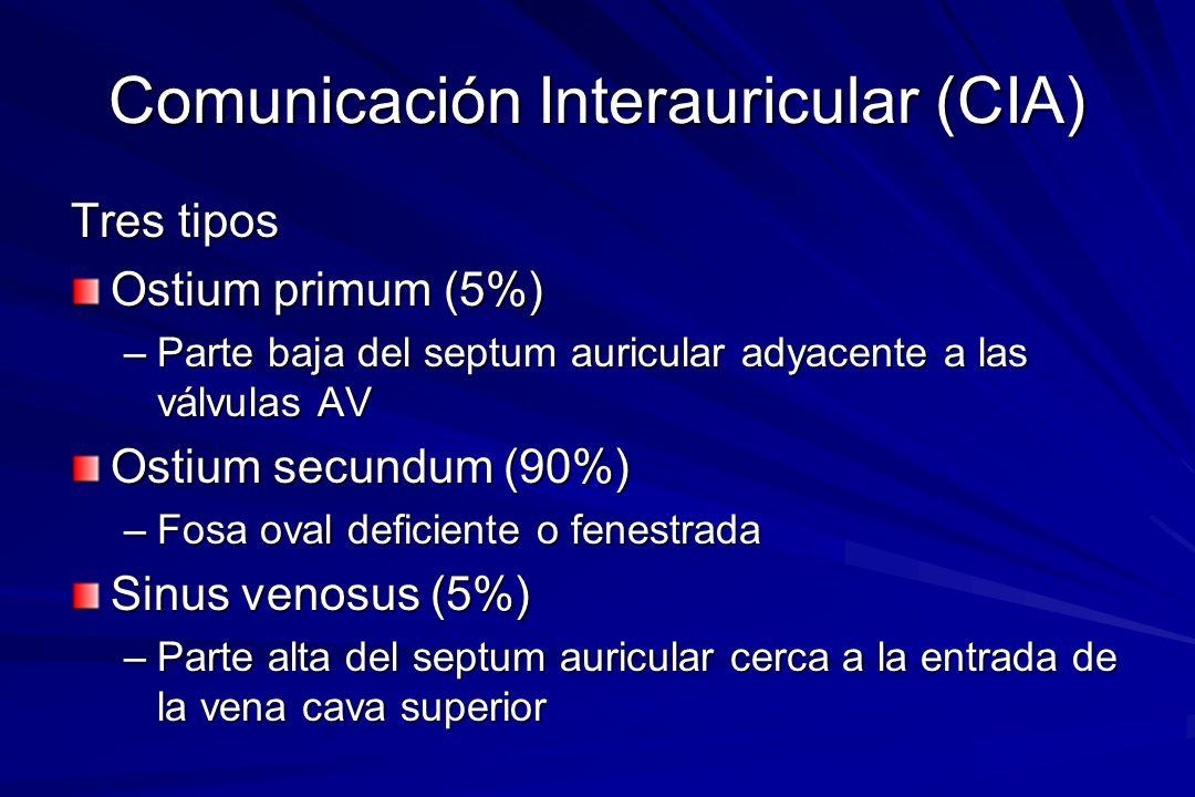 Comunicación Interauricular (CIA) Tres tipos Ostium primum (5%) –Parte baja del septum auricular adyacente a las válvulas AV Ostium secundum (90%) –Fo