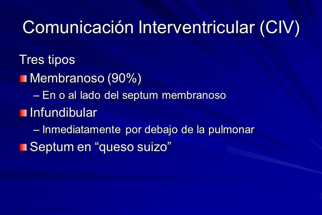 Comunicación Interventricular (CIV) Tres tipos Membranoso (90%) –En o al lado del septum membranoso Infundibular –Inmediatamente por debajo de la pulm