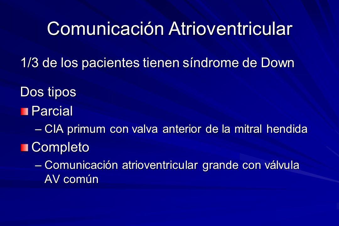 Comunicación Atrioventricular 1/3 de los pacientes tienen síndrome de Down Dos tipos Parcial –CIA primum con valva anterior de la mitral hendida Compl