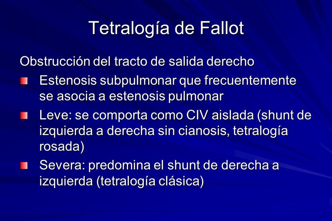 Tetralogía de Fallot Obstrucción del tracto de salida derecho Estenosis subpulmonar que frecuentemente se asocia a estenosis pulmonar Leve: se comport