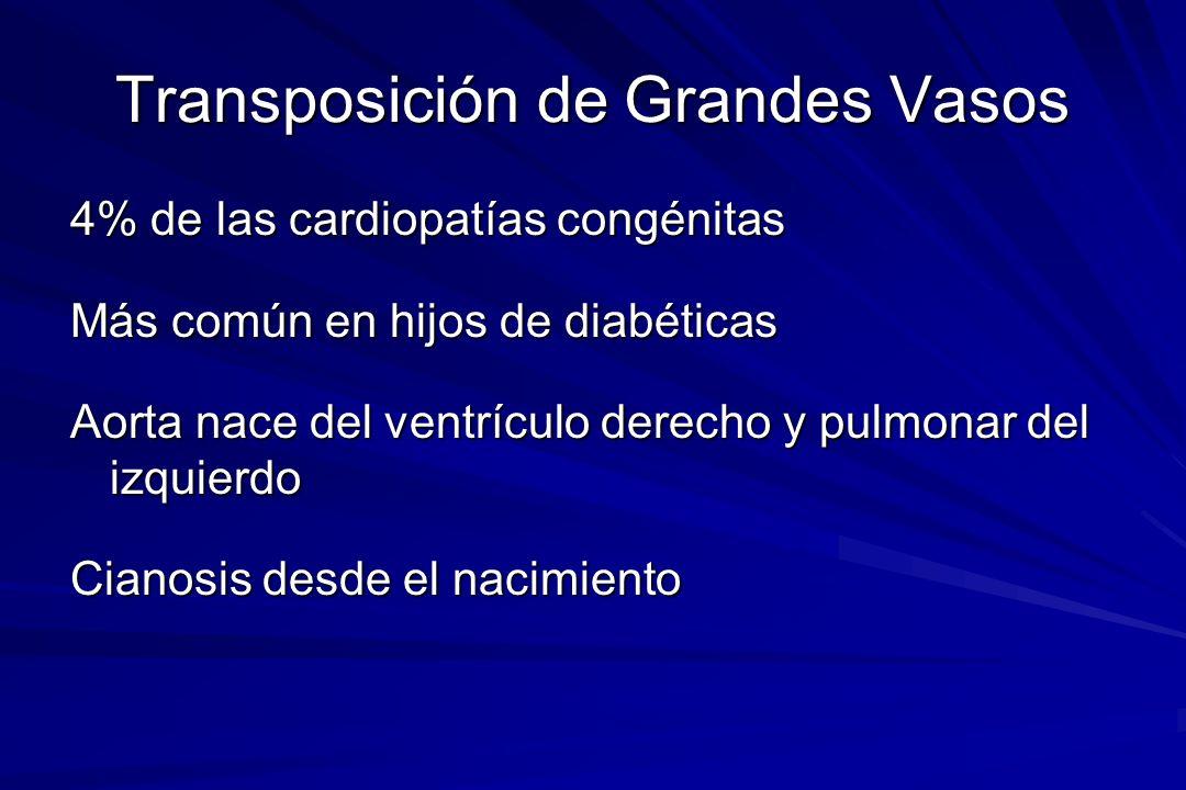 Transposición de Grandes Vasos 4% de las cardiopatías congénitas Más común en hijos de diabéticas Aorta nace del ventrículo derecho y pulmonar del izq