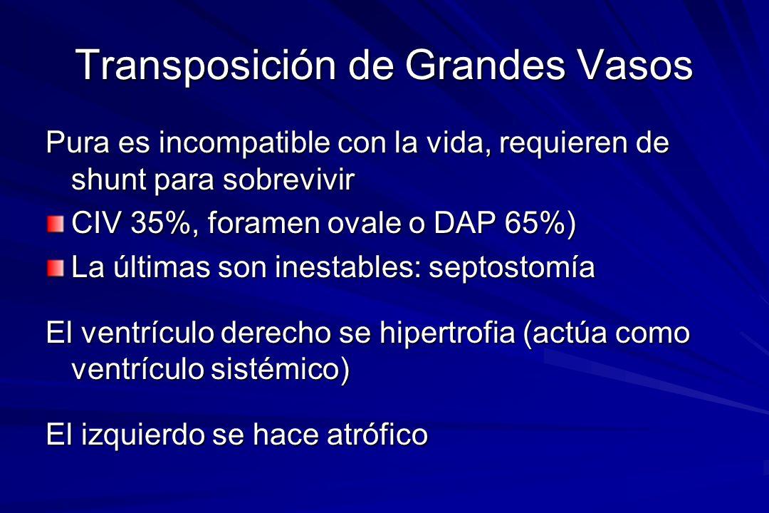Transposición de Grandes Vasos Pura es incompatible con la vida, requieren de shunt para sobrevivir CIV 35%, foramen ovale o DAP 65%) La últimas son i