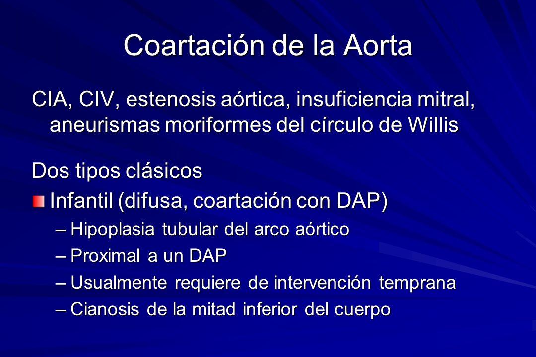 Coartación de la Aorta CIA, CIV, estenosis aórtica, insuficiencia mitral, aneurismas moriformes del círculo de Willis Dos tipos clásicos Infantil (dif