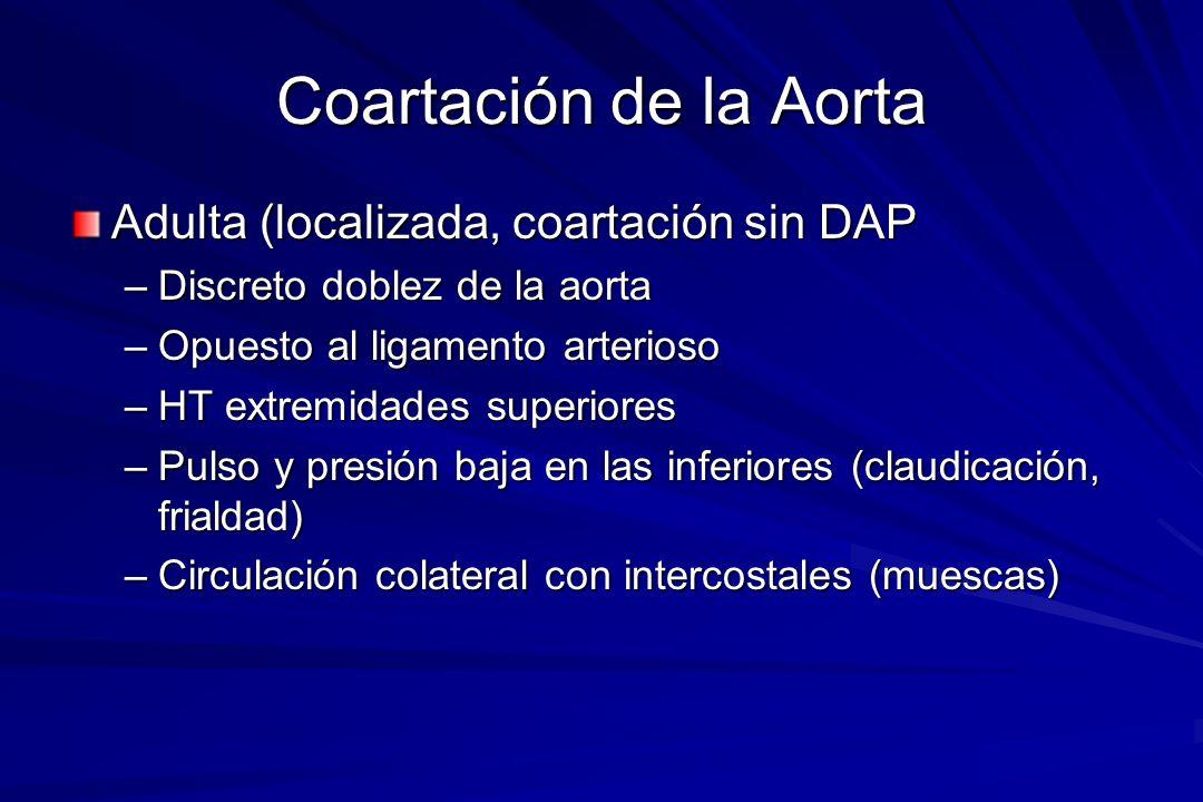 Coartación de la Aorta Adulta (localizada, coartación sin DAP –Discreto doblez de la aorta –Opuesto al ligamento arterioso –HT extremidades superiores