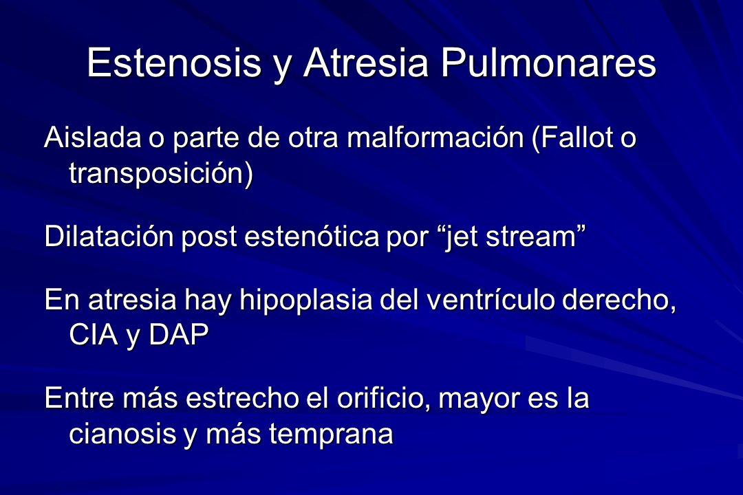 Estenosis y Atresia Pulmonares Aislada o parte de otra malformación (Fallot o transposición) Dilatación post estenótica por jet stream En atresia hay
