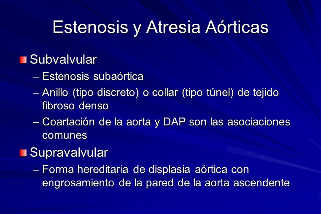 Estenosis y Atresia Aórticas Subvalvular –Estenosis subaórtica –Anillo (tipo discreto) o collar (tipo túnel) de tejido fibroso denso –Coartación de la