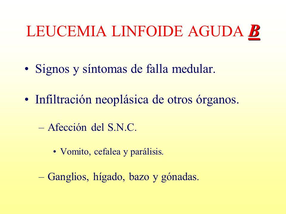 Signos y síntomas de falla medular. Infiltración neoplásica de otros órganos. –Afección del S.N.C. Vomito, cefalea y parálisis. –Ganglios, hígado, baz