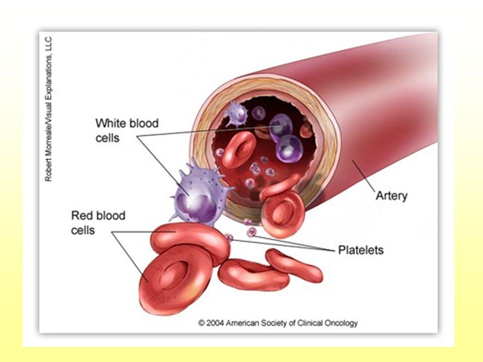 Síntomas escasos y poco específicos.–ANEMIA –Infecciones y hemorragias.