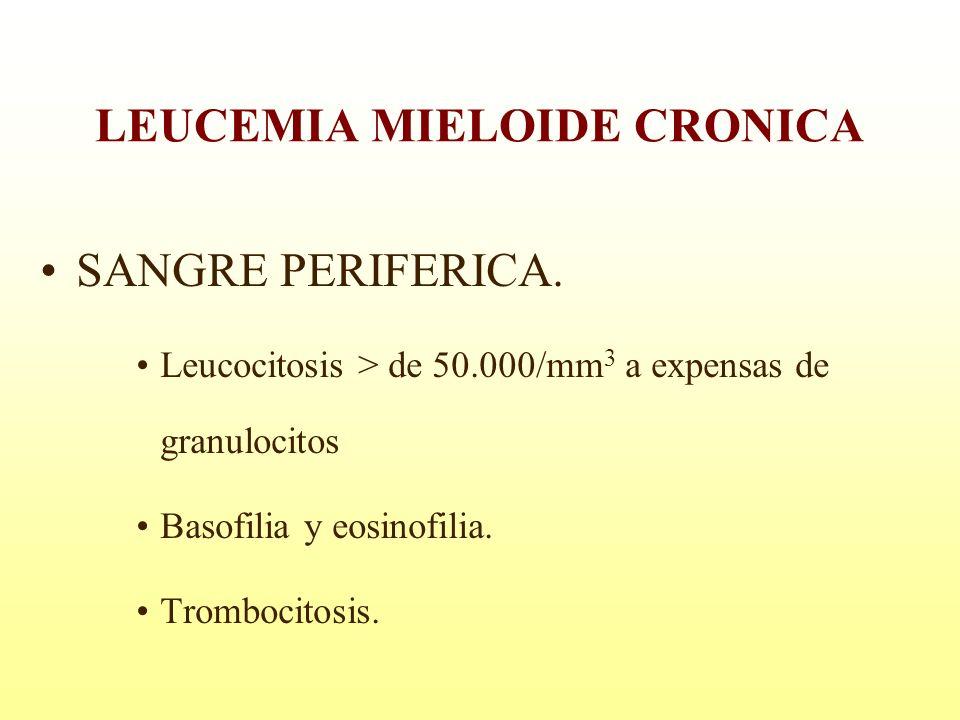 SANGRE PERIFERICA. Leucocitosis > de 50.000/mm 3 a expensas de granulocitos Basofilia y eosinofilia. Trombocitosis. LEUCEMIA MIELOIDE CRONICA