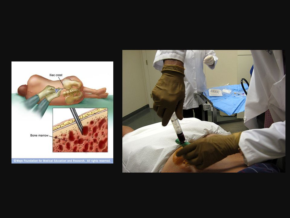 Fase final de agotamiento –fibrosis medular y citopenias.