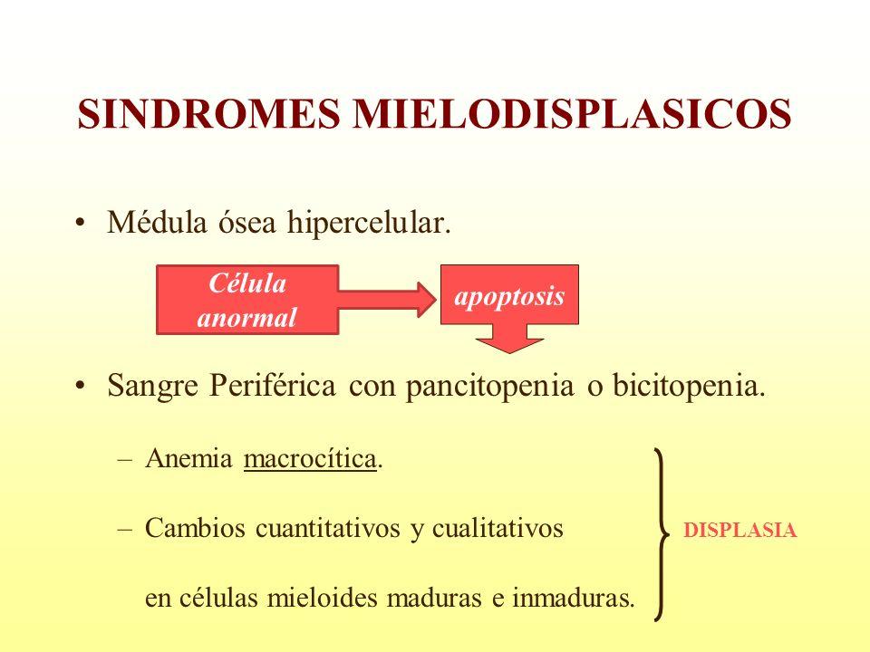 Médula ósea hipercelular. Sangre Periférica con pancitopenia o bicitopenia. –Anemia macrocítica. –Cambios cuantitativos y cualitativos DISPLASIA en cé