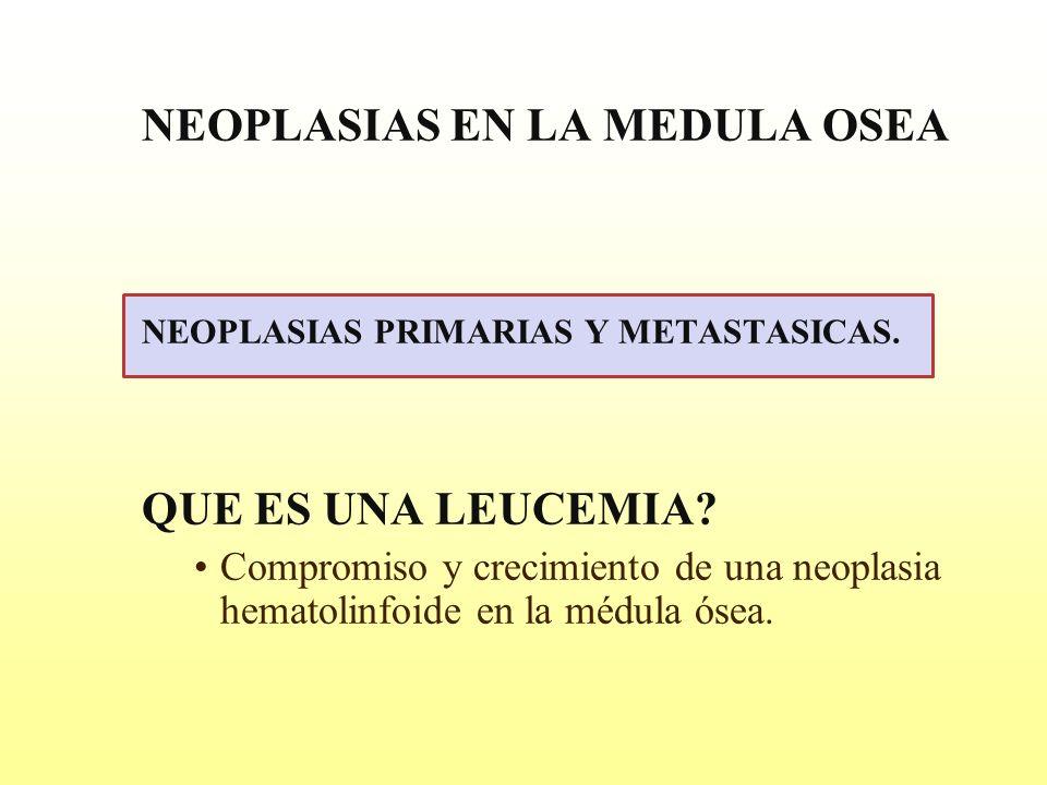 NEOPLASIAS EN LA MEDULA OSEA NEOPLASIAS PRIMARIAS Y METASTASICAS. QUE ES UNA LEUCEMIA? Compromiso y crecimiento de una neoplasia hematolinfoide en la