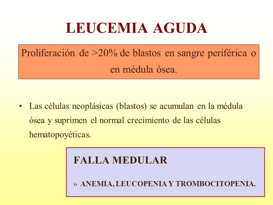 LEUCEMIA AGUDA Proliferación de >20% de blastos en sangre periférica o en médula ósea. Las células neoplásicas (blastos) se acumulan en la médula ósea