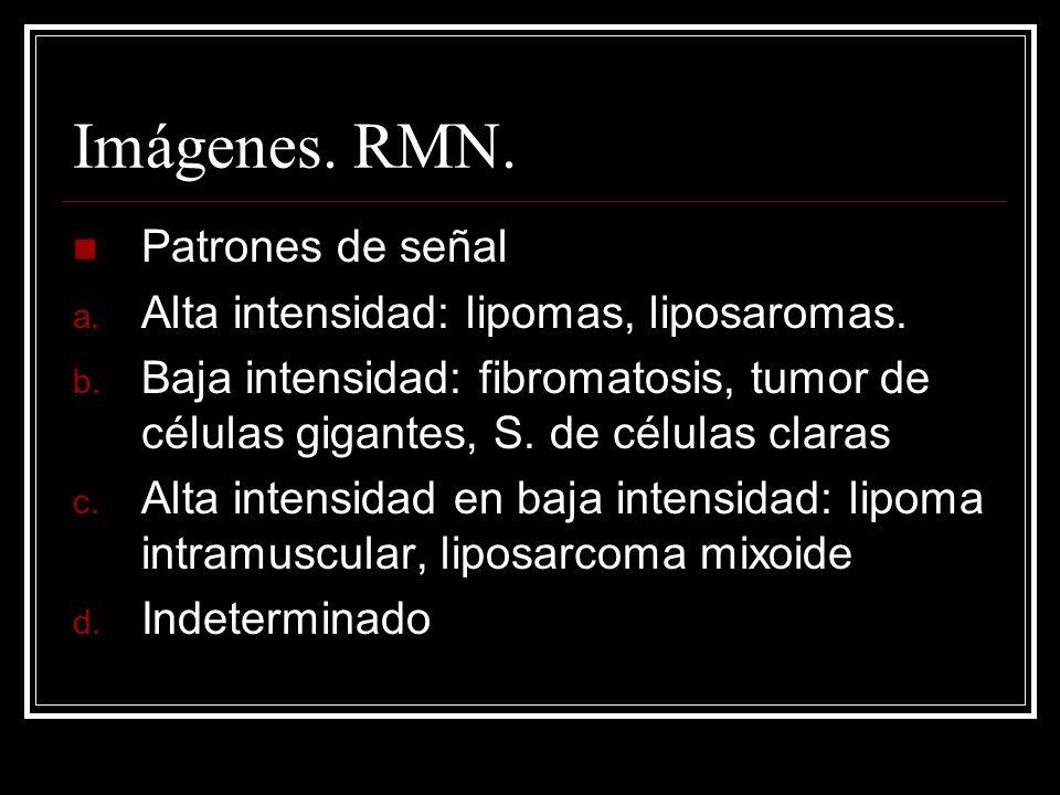 Imágenes. RMN. Patrones de señal a. Alta intensidad: lipomas, liposaromas. b. Baja intensidad: fibromatosis, tumor de células gigantes, S. de células