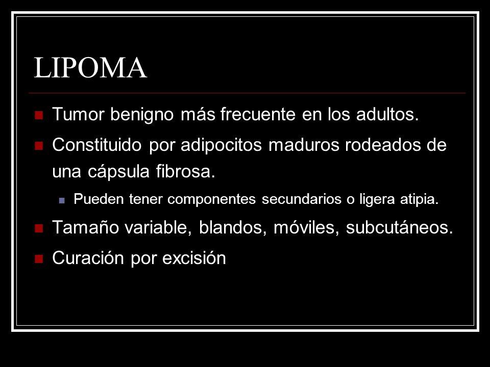 LIPOMA Tumor benigno más frecuente en los adultos. Constituido por adipocitos maduros rodeados de una cápsula fibrosa. Pueden tener componentes secund