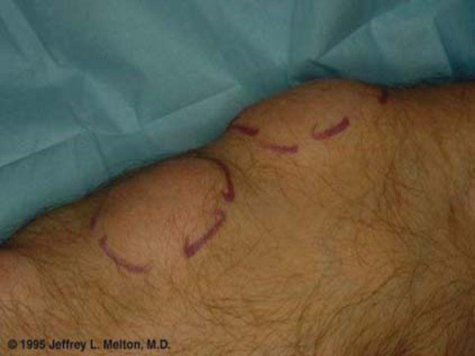 HEMANGIOMA – LINFANGIOMA Lesiones benignas constituidas por proliferación de vasos sanguíneos y/o linfáticos en diversos estadios de maduración.