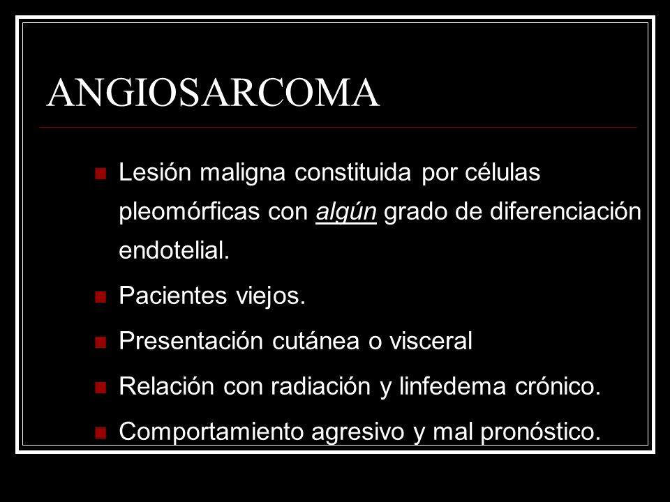 ANGIOSARCOMA Lesión maligna constituida por células pleomórficas con algún grado de diferenciación endotelial. Pacientes viejos. Presentación cutánea