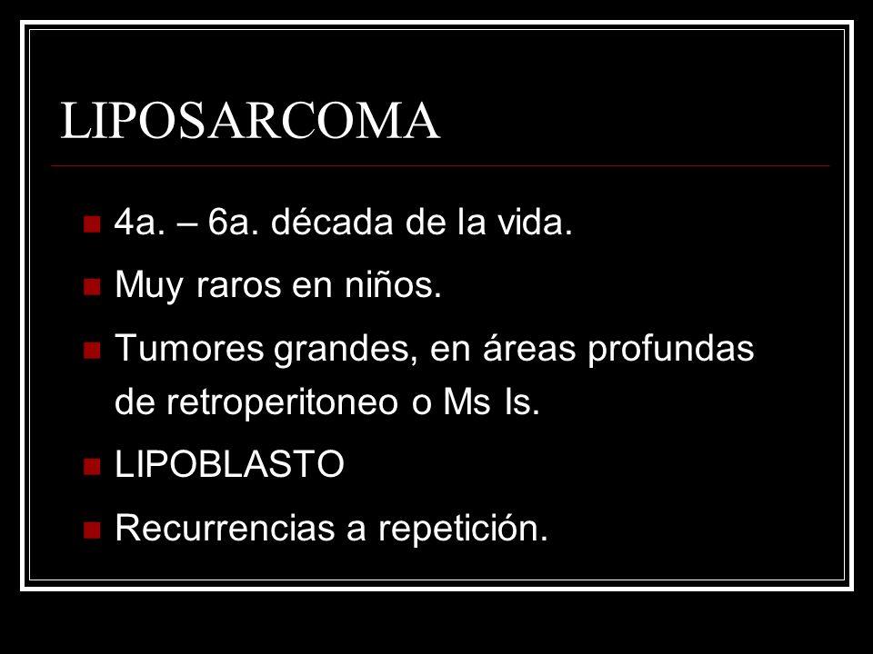 LIPOSARCOMA 4a. – 6a. década de la vida. Muy raros en niños. Tumores grandes, en áreas profundas de retroperitoneo o Ms Is. LIPOBLASTO Recurrencias a