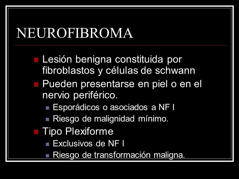 NEUROFIBROMA Lesión benigna constituida por fibroblastos y células de schwann Pueden presentarse en piel o en el nervio periférico. Esporádicos o asoc