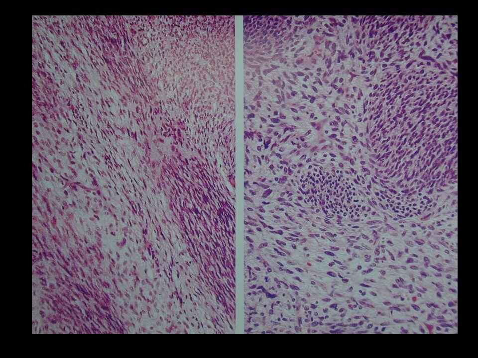 SARCOMA SINOVIAL Histogénesis incierta.10% de todos los sarcomas.